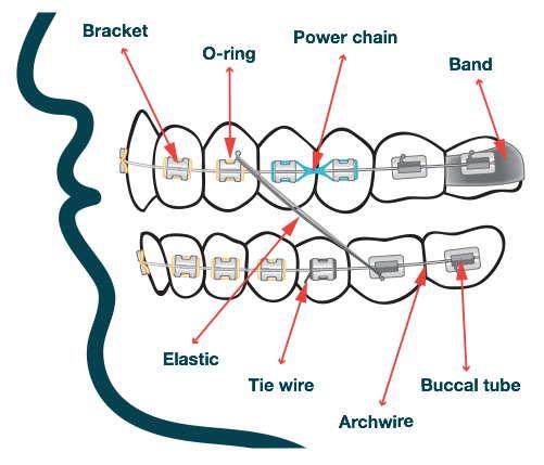 braces-components